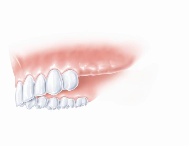 Trūksta keleto gretimų dantų eilės gale