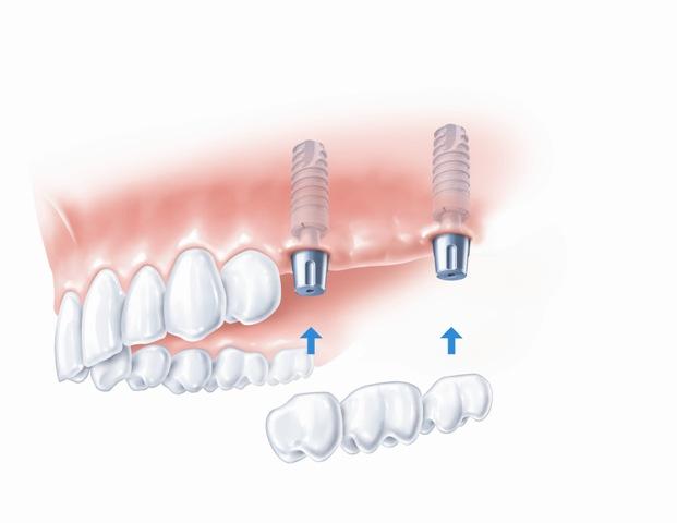 Ant dantų implantų fiksuojamas tiltelis