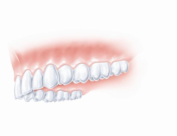 Rezultatas - nepriekaištinga krūminių dantų estetika ir funkcionalumas.