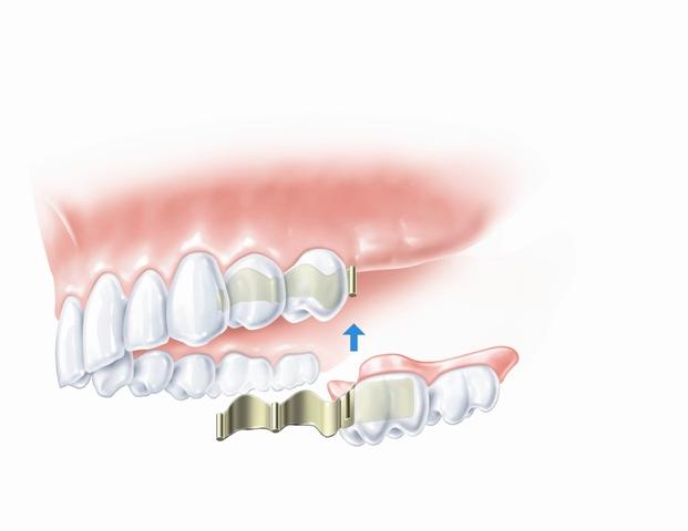 Nuimamas dalinis protezas (trūksta 2 dantų)