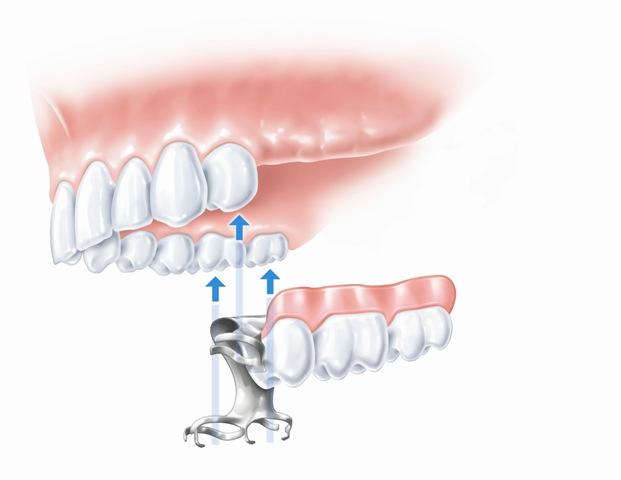 Nuimamas dalinis protezas (trūksta 3 dantų)