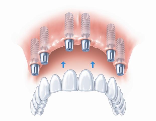 Nuolatinis tiltelis pritvirtintas prie implantų
