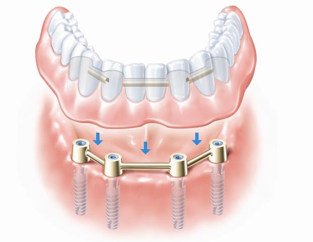 Implantai - tvirtas pagrindas protezui