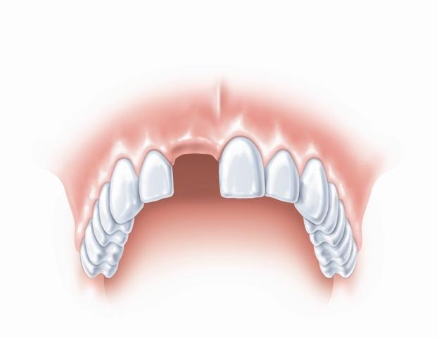 Trūksta vieno danties estetinėje zonoje