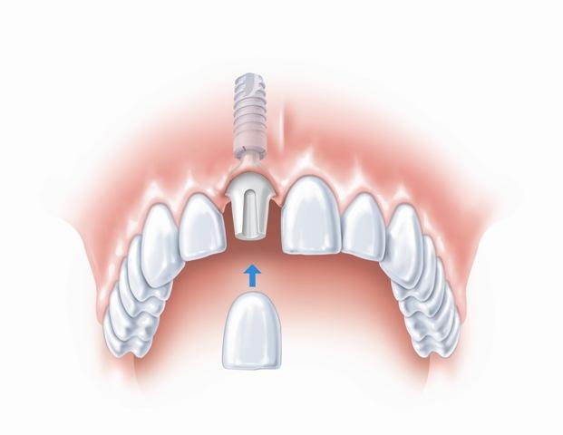 Prie implanto tvirtinamas danties vainikėlis