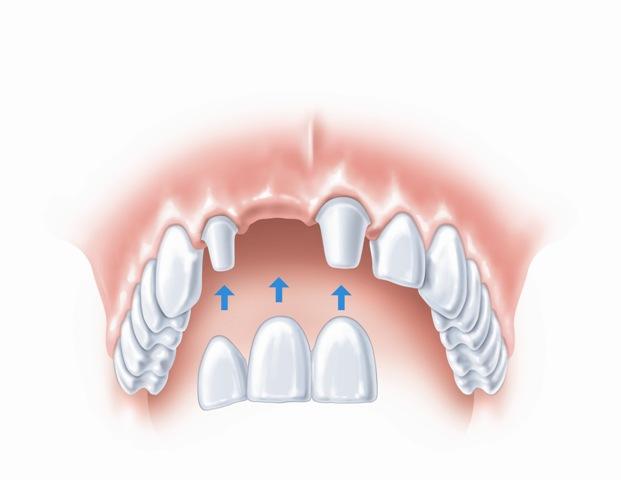 Įprastas gretimų dantų prilaikomas tiltelis
