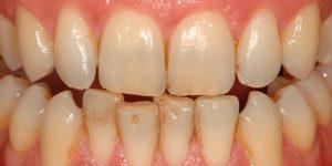 Prieš dantų balinimą