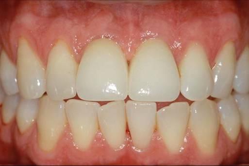 Dantų implantacija po