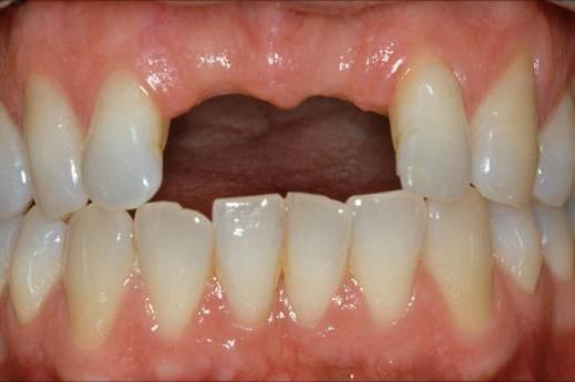 Dantų implantacija prieš