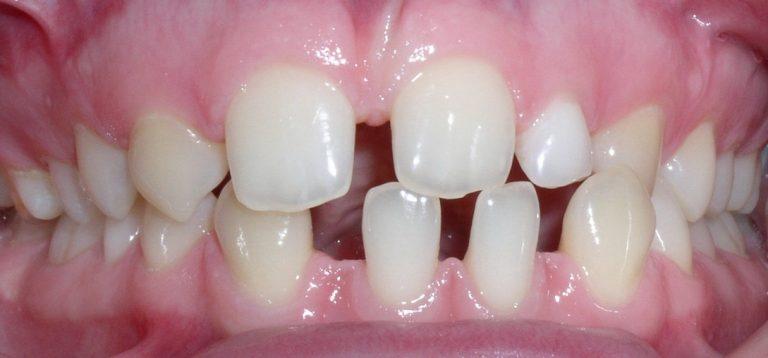 Prieš ortodontiją
