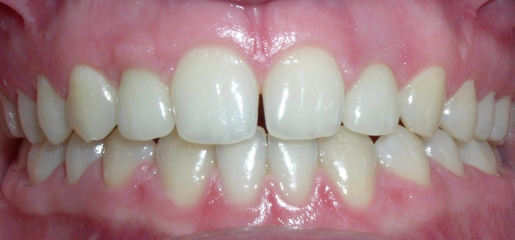 Po ortodontijos